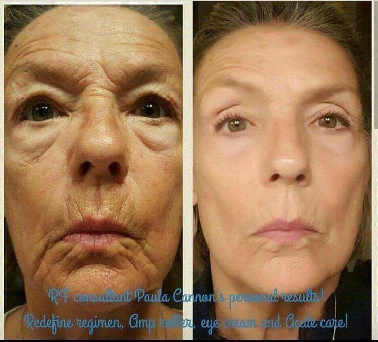 Redefine and AMP MD roller. Rodan + Fields allows customers to age backwards! <3