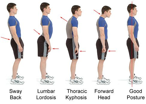 Great chart showing good posture. #chiropractic www.potomacpain-center.com