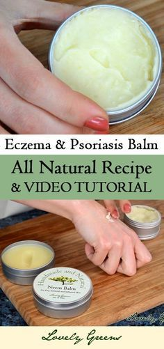 Recipe and video tutorial for making Healing Neem Balm for Eczema & Psoriasis - it soothes inflammation and itchiness and helps promote healing!