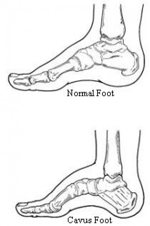 One Of The Reason For Charcot Marie Tooth Disease Is Abnormalities