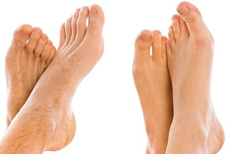 1000 Ideas About Laser Toenail Fungus Removal On