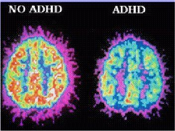 Attention Deficit Disorder (ADD) and Ascension | in5d.com | Esoteric, Spiritual and Metaphysical Database |