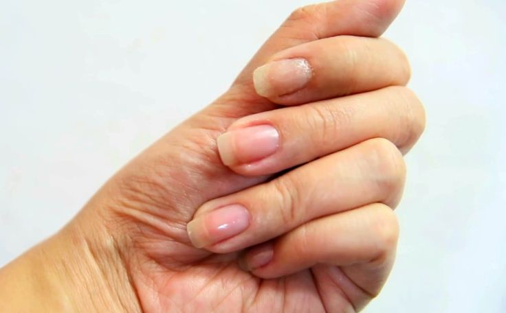 Having a split nail can be painful and inconvenient. When your nail is split…