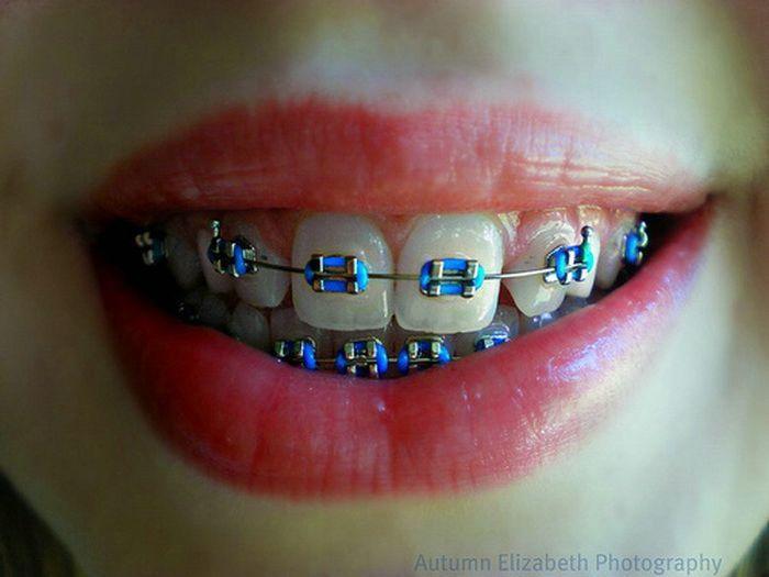 Blue Braces For Teeth