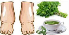 Ţi se umflă picioarele? Iata CEL MAI BUN REMEDIU pentru PICIOARE UMFLATE! Picioarele umflate apar ca urmare a retentiei de fluide in corp. Ele pot fi rezultatul: - sindromului premenstrual - sarcina - circulatie proasta - exces de mancaruri bogate in sare - un stil de viata sedentar - efect