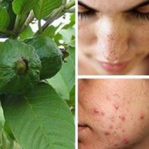 Image Result For Pine Tree Allergy Treatment