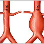 Diagnóstico oportuno y tratamiento del aneurisma de aorta abdominal