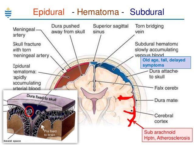 epidural vs subdural hematoma presentation - Google Search