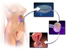 In vitro fertilisation By--  Sir Robert Geoffrey Edwards, CBE, FRS (27 September 1925 – 10 April 2013)  https://en.wikipedia.org/wiki/Robert_Edwards_(physiologist)