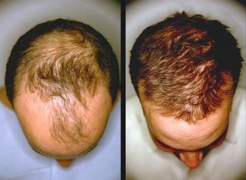 Cómo usar y preparar jugo de cebolla para crecer y prevenir la caída del pelo - Vida Lúcida