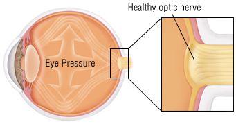 Optic Nerve Swelling (Papilledema)