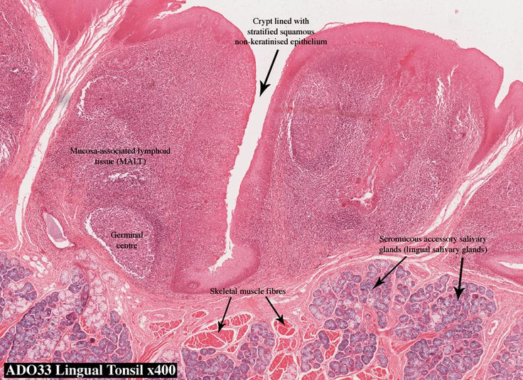 palatine tonsil histology Google Search Anatomy and