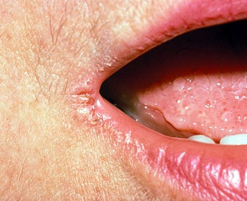 10 Best Home Remedies for Angular Cheilitis. What is Angular Cheilitis?  Inflammation at one or both corners of the mouth is termed as angular cheilitis. These are a kind of sensitive sores, which start with a little discomfort and generally take a serious form, causing dryness, chapping and eventually, red lesions. It only sticks to the area of lips and does not spread. One thing should