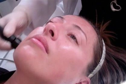 Revital Radio Frequency - the best non-invasive facelift I've ever tried.