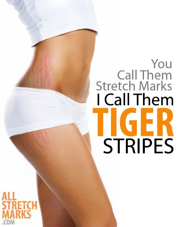 You call them Stretch Marks... I call them TIGER STRIPES!