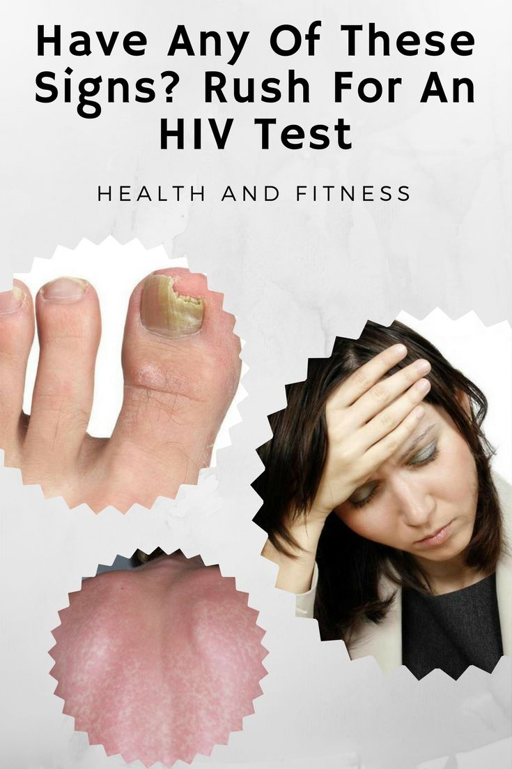 Have Any Of These Signs? Rush For An HIV Test