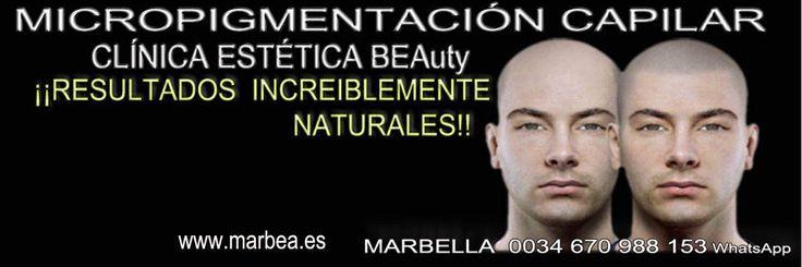 ;->MICROPIGMENTACIÓN CAPILAR ALGECIRAS or en Marbella o en Jerez de la Frontera tatuaje Vélez-Málaga