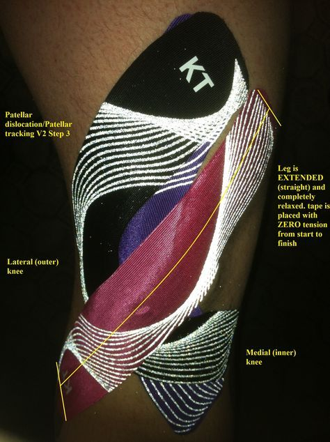 Best Running Shoes For Patellar Tracking