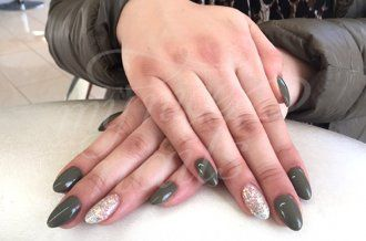 Ovale Nägel – Naildesign | Nailart by My Nice Nails GmbH – What do you think? For more info visit us at mynicenails.ch #nails #naildesign #nailart #nailstudio