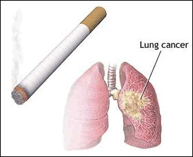 http://apacbiotech1.blogspot.in/2013/08/major-problems-of-lungs-cancer-inside.html