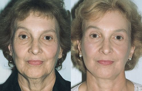 Congratulate, what facial swelling face lift remarkable
