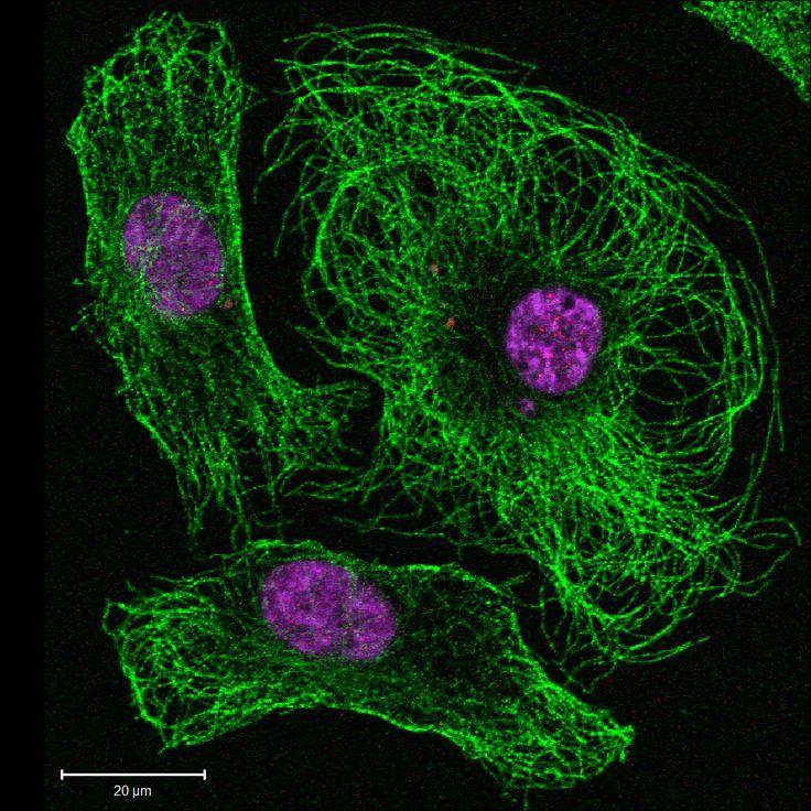 Imagen de inmunofluorescencia de células endoteliales con microtúbulos del citoesqueleto (verde) y núcleos (morado).