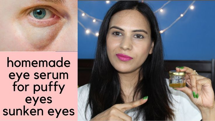 Eye serum for puffy eyes sunken eyes | homemade eye serum for puffy eyes...