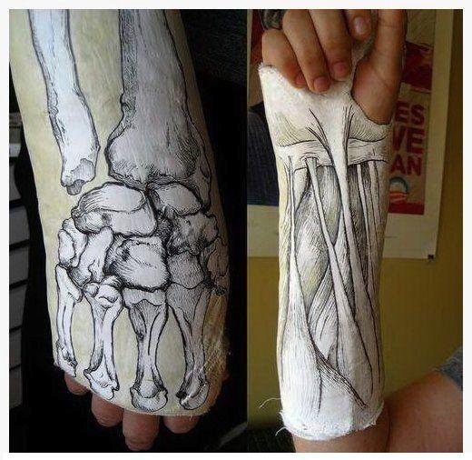 35 best cast ideas images on pinterest arm cast for Arm cast decoration ideas
