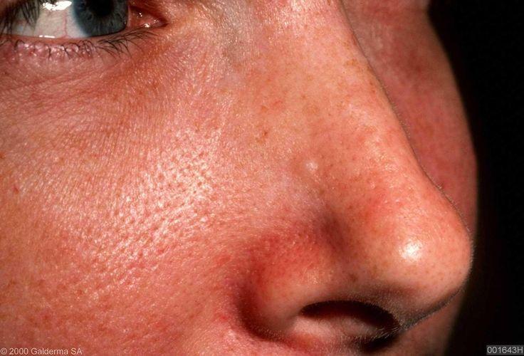 basal skin carcinoma nose - Glamor Bank - Image Results