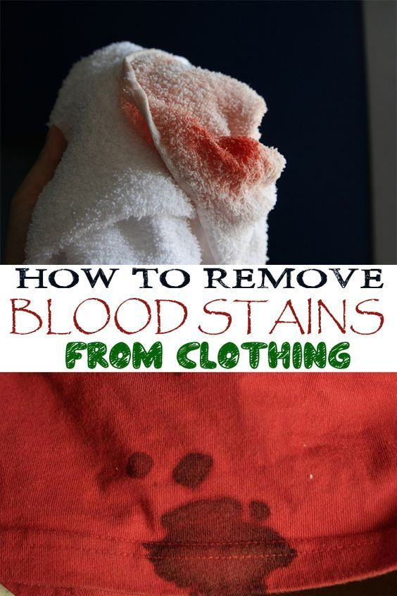 25 Best Ideas About Remove Blood Stains On Pinterest