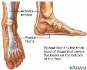 Plantar fasciitis can be very painful but is very treatable with massage and a little home therapy.
