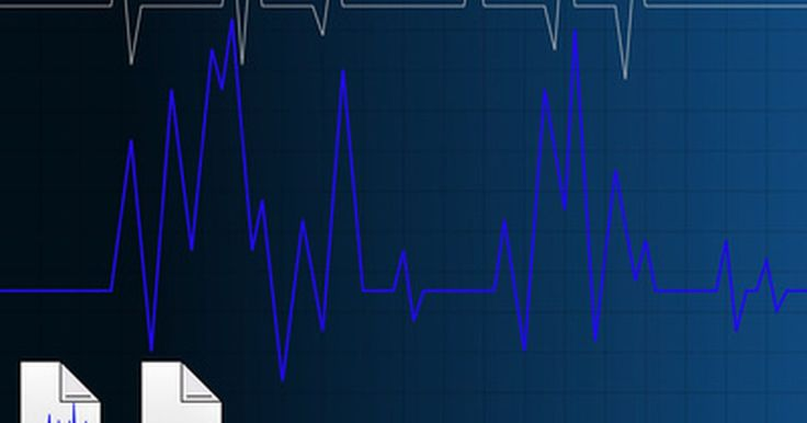 Qual a pulsação normal para os mais velhos?. Sua pulsação, também chamada de frequência cardíaca, é a medida do número de vezes que o coração bate em um minuto. A Clínica Cleveland afirma que seu ritmo cardíaco é menor quando você está em repouso e que aumenta durante os exercícios, pois seu coração bate mais rápido para fornecer mais oxigênio para seus pulmões, músculos e outros tecidos do ...