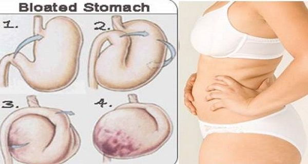 Severe bloating and constipation