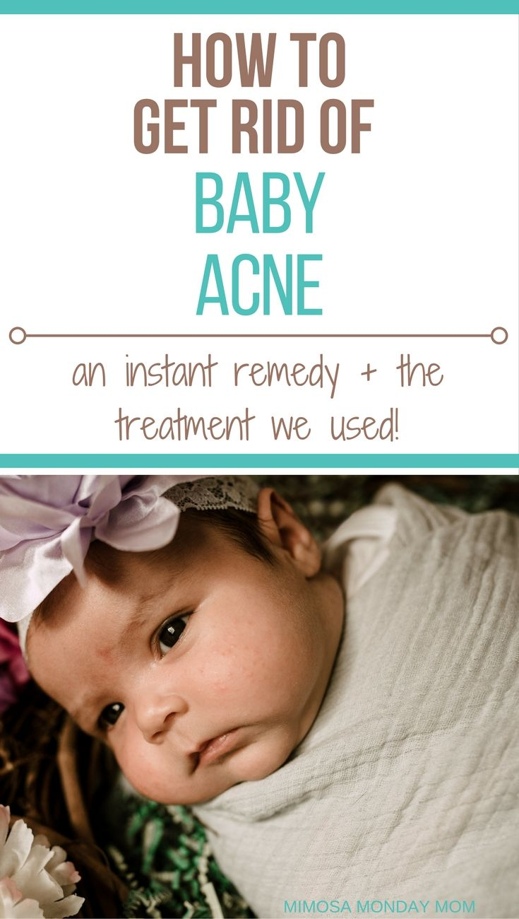 The dreaded baby acne! Although our babies will ALWAYS be perfect in our eyes, let's face it moms, baby acne stinks! It's red, bumpy, and can get overwhelming and almost concerning if it's not going away! Here is the one baby acne treatment I found, that helped cure my beautiful girls' baby acne!