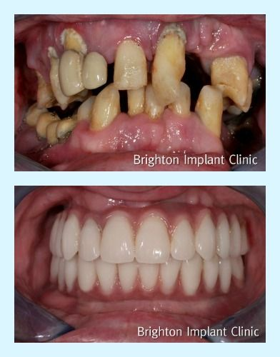 Dentures Near Me >> Amazing full-mouth rehabilitation using dental-implants ...