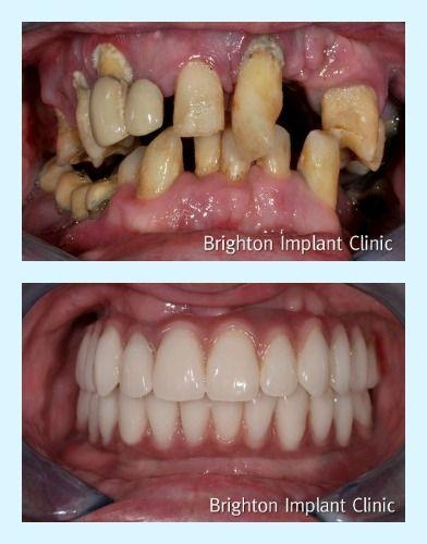 Pin By Dr John Killeen Dentist On Dental Implants Veneers