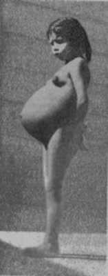 Lina Medina (1939)