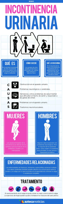 Hemos elegido esta infografía porque nos ha parecido muy completa y clara, sobre las causas y tratamientos tanto en hombres como en mujeres.