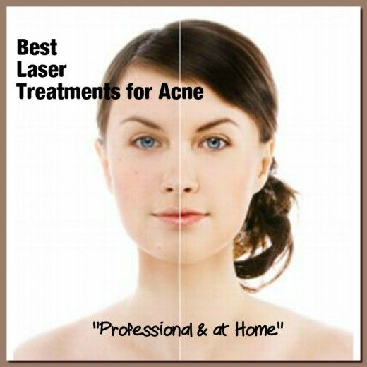 What is the best laser for acne? Best at home lasers to treat acne. #beauty #acne #skin #care
