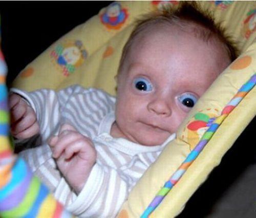 ugly babies with big eyes - photo #5