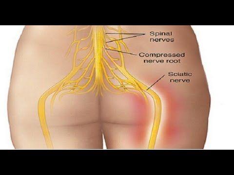 Como tratar la ciatica o dolor del nervio ciatico con tratamientos naturales - YouTube