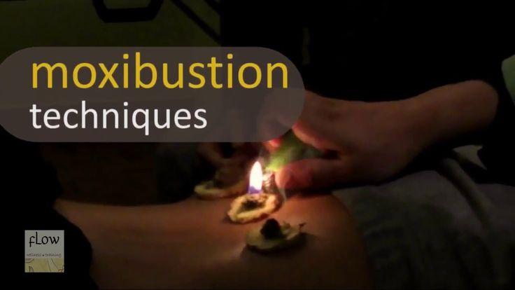 Moxibustion techniques - shots 2