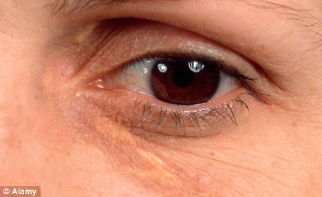 the raised yellow patches around the eyelids was a more reliable sign of heart disease in women