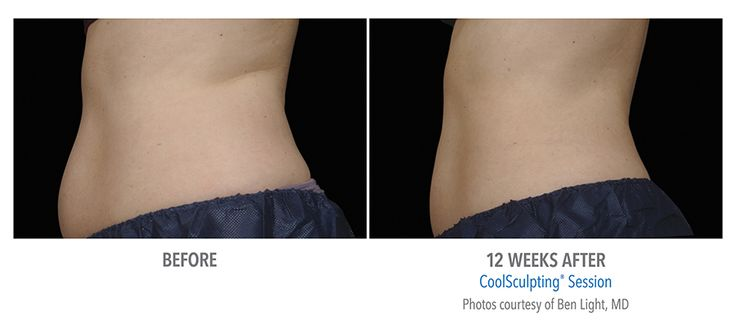 Always struggled with a round belly and want to reduce belly fat.  Coolsculpting will give you what you want with natural looking results.