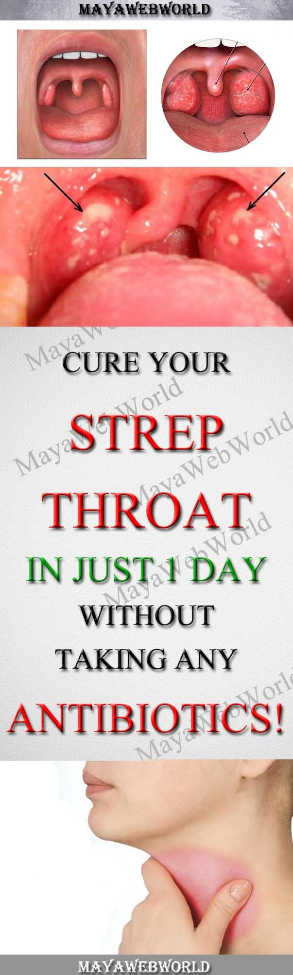 Cure Your Strep Throat In Just One Day Without Taking Any Antibiotics! – MayaWebWorld