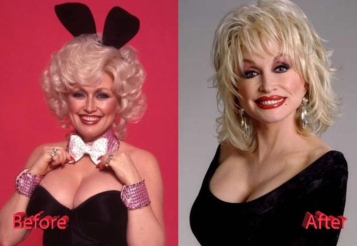 Dolly Parton Before and After Facelift