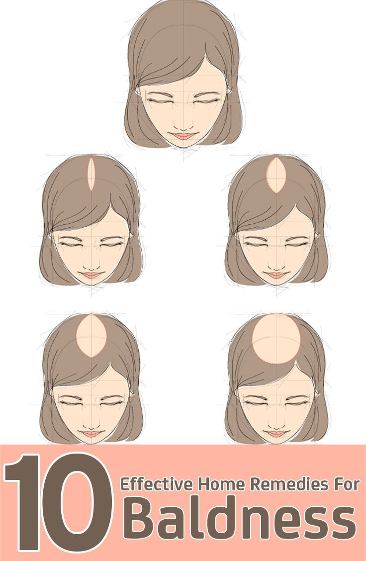 Best  Home Remedies For Baldness Ideas On Pinterest - Onion juice for hair regrowth review