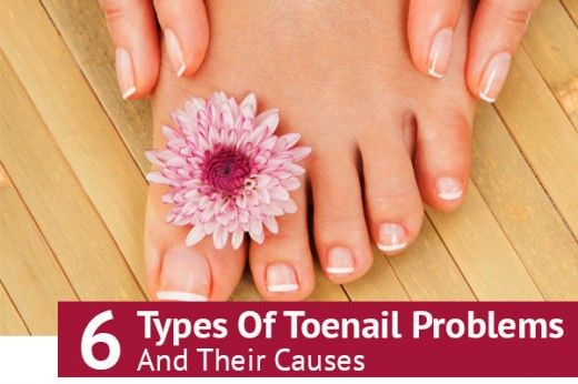 6 Types Of Toenail Problems And Their Causes