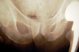 Bruised Tailbone Treatment