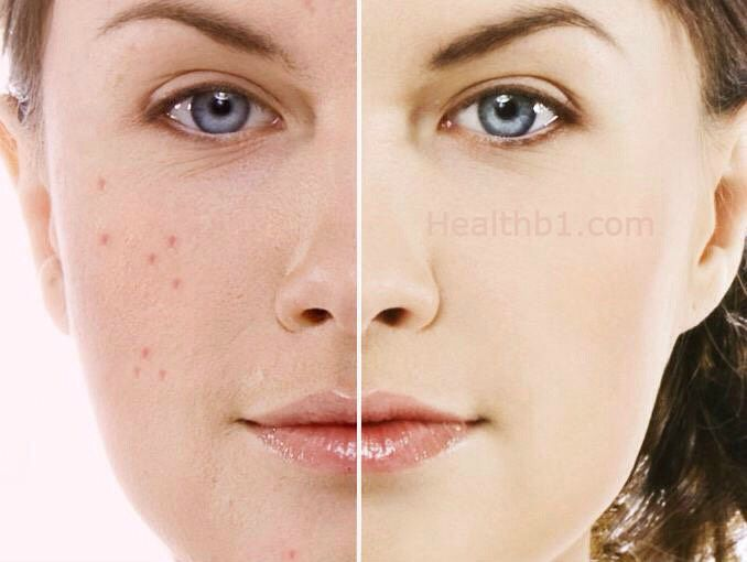 How to avoid pimples, Best pimple treatment, natural pimple treatment. Acne scar treatment, pimple popper, pimples on face.